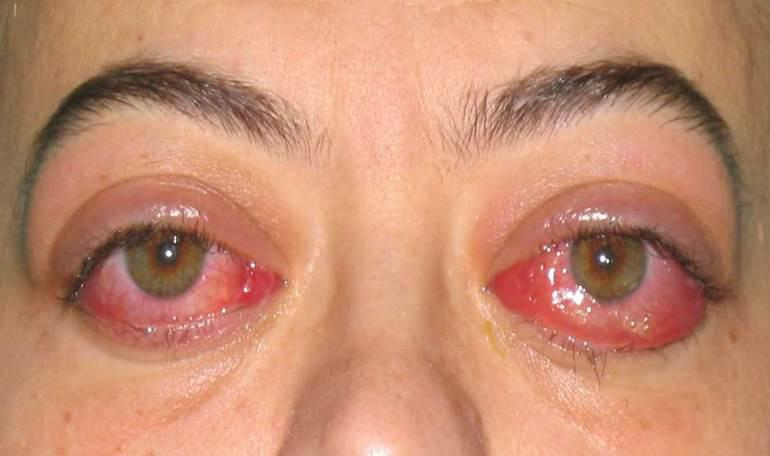 Thyroid Eye Disease Treatment St George Salt Lake City Utah