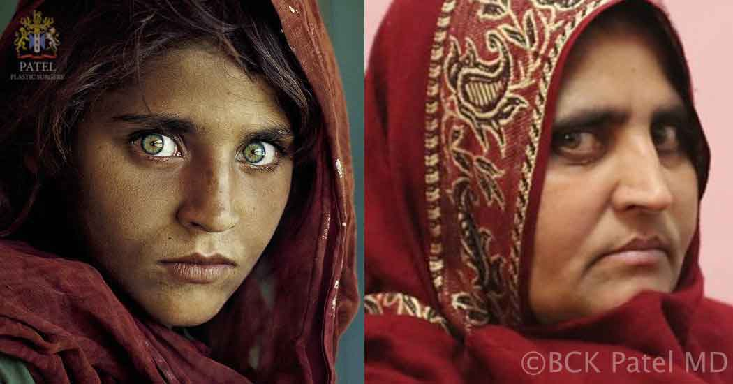 Dr. Bhupendra C. K. Patel MD, of Salt Lake City and Saint George illustrating aging in the Afghan Girl