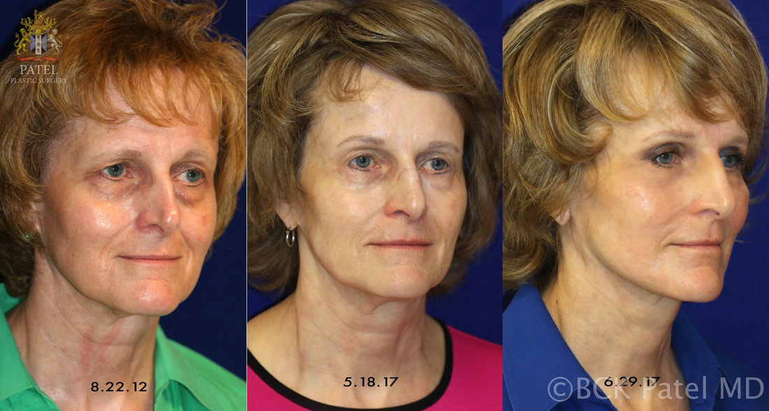 A properly performed facelift together with browlifts and ptosis repair gives beautiful results