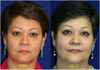 Blepharoplasty and also the long term results of upper and lower eyelid surgery
