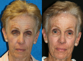 Brow ptosis and ptosis repair and facelift