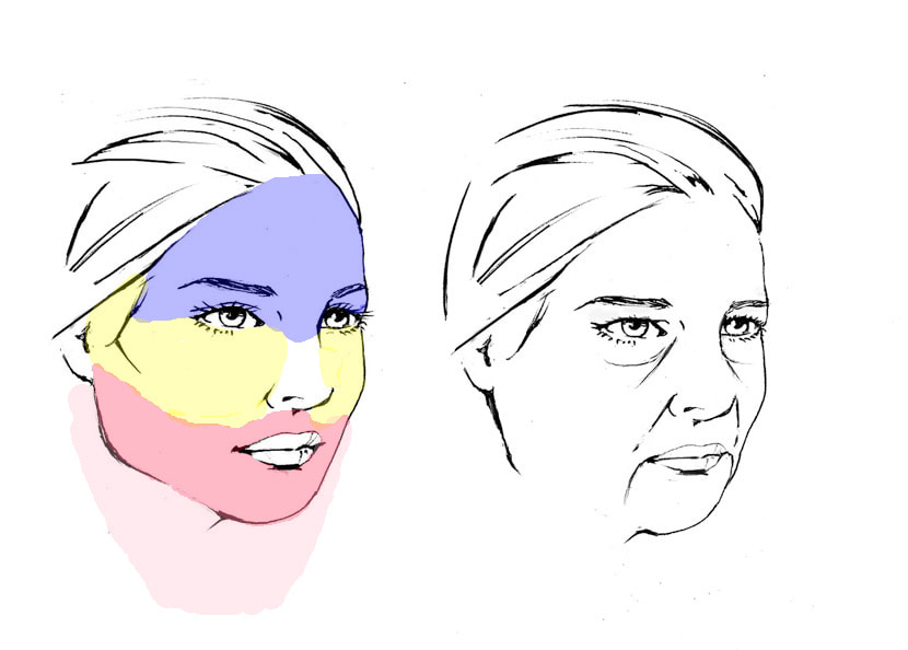 Cosmetic surgical approach to the middle third of the face to include the lower eyelids and cheeks