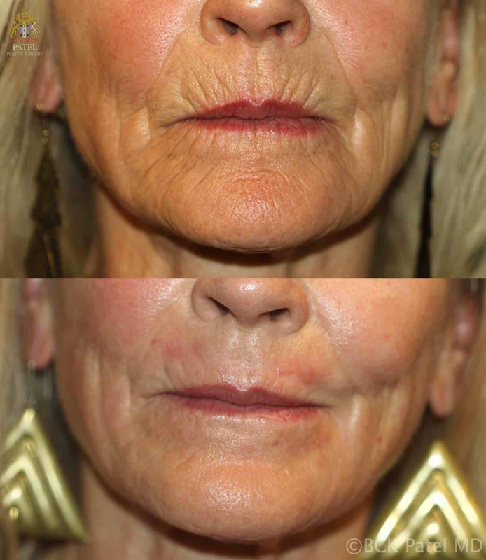 CO2 laser to lip lines by Dr. BCK Patel MD, FRCS, Patel Plastic Surgery