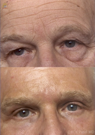 Upper and lower blepharoplasty in a man by Dr. Bhupendra C. K. Patel MD or Salt Lake City and Saint George, Utah