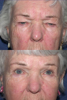 upper eyelid fillers cosmetic surgery