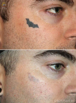Laser tattoo removal of a dark, uniform tattoo by Dr. Bhupendra Patel MD