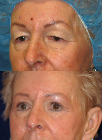 Photos illustrate the nice improvement possible by performing careful blepharoplasty with attention to detail: recreation of curves, preservation of fat, creating skin crease: results of Patel Blepharoplasty