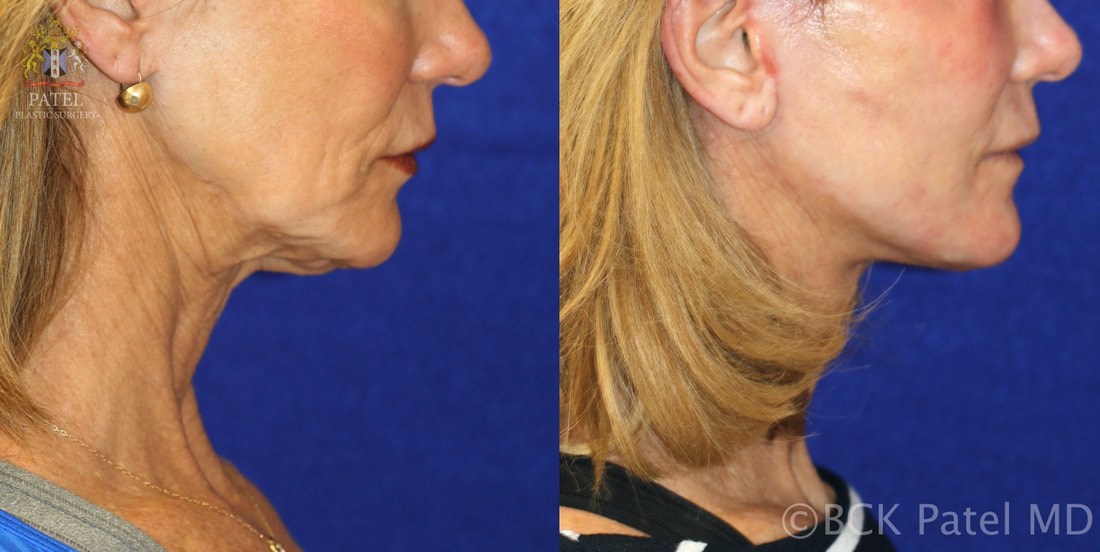 Facelift results before and after in a lady by Dr. Bhupendra C. K. Patel MD, best plastic surgeon Salt Lake City, Saint George, Utah
