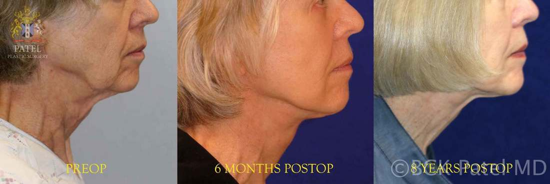 Photos to show how a well-performed facelift will give a marked improvement in the face. Dr. Bhupendra C. K. Patel MD