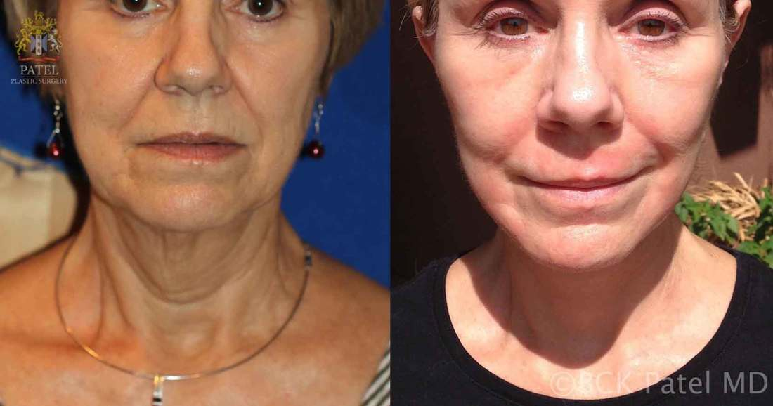 Lower facelift and necklift showing an improvement in the jowls as well as the neck by Dr. Bhupendra C. K. Patel MD of Salt Lake City, and Saint George, Utah
