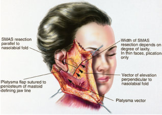 Anatomy of the face during a facelift