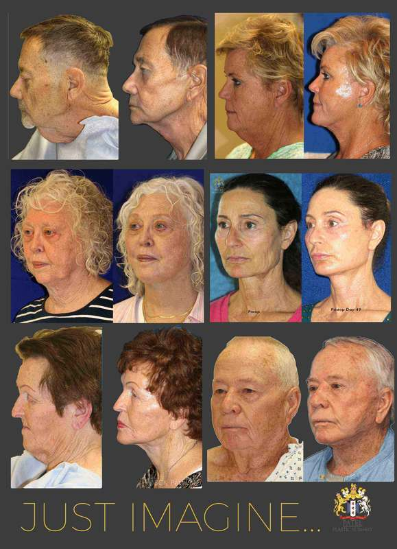 Facelift results in men and in women by Dr. Bhupendra C. K. Patel MD of Salt Lake City and Saint George, Utah. Best facelift surgeon Dr. Bhupendra C. K. Patel MD