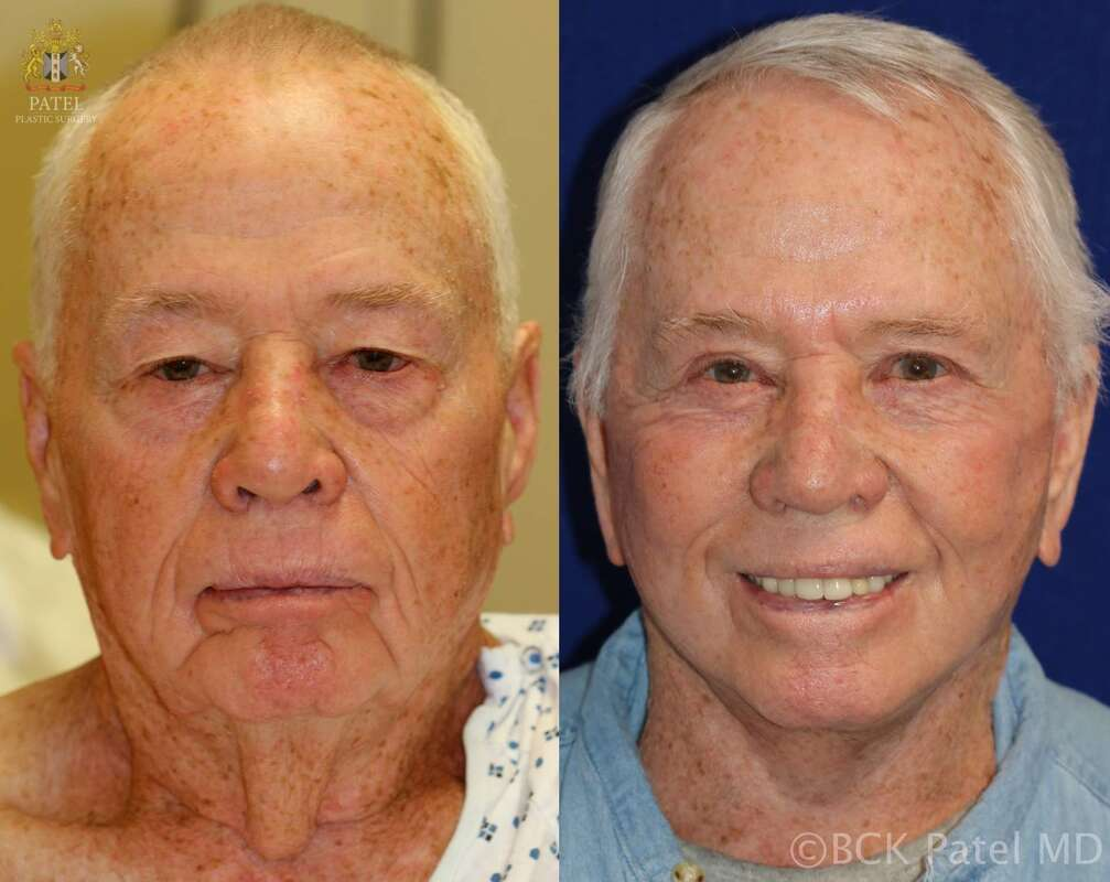 Results of a facelift in a male by Prof. Bhupndra C. K. Patel MD, of Salt Lake City and Saint George, Utah