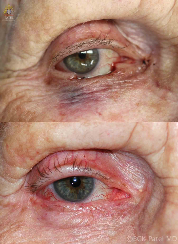 Eyelid reconstruction Basal Cell Carcinoma, by Dr. BCK Patel MD, FRCS of Salt Lake City and St. George, Utah