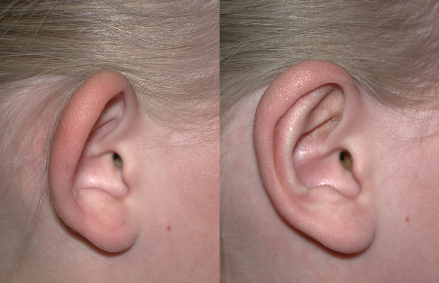 Otoplasty Ear Pinning or Bat Ear Repair St George Salt Lake City ...