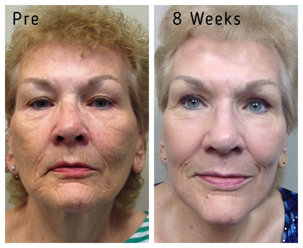 J Plasma Skin Resurfacing Salt Lake City St George Utah