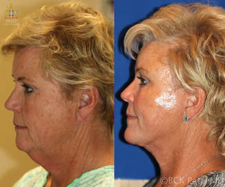 A facelift and necklift together with the use of lasers and fat grafts gives a nice jawline and neck