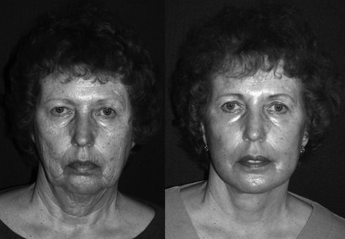 A facelift combined with lasers, fat graft and tissue repositioning gives an improvement in the skin, facial tissues and the jawline and neck