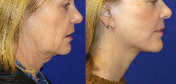 Advanced facelift and necklift pays attention to the jawline, neck and the submental fullness and laxity. A beautifully performed facelift is seen here