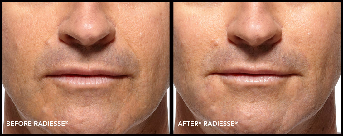 Radiesse St George Salt Lake City Utah - Patel Plastic Surgery