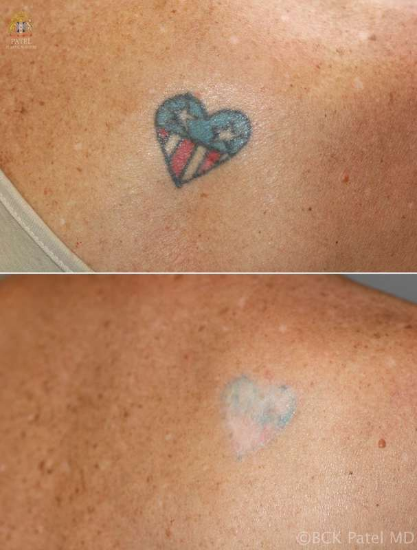 Laser tattoo removal of green, blue and red tattoo by Dr. Bhupendra Patel MD