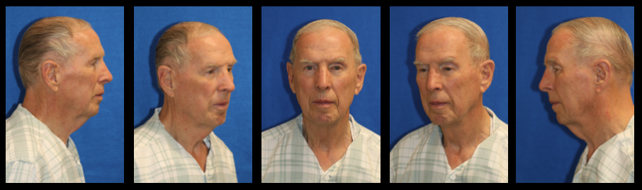 patel plastic surgery facelift male facelift and necklift