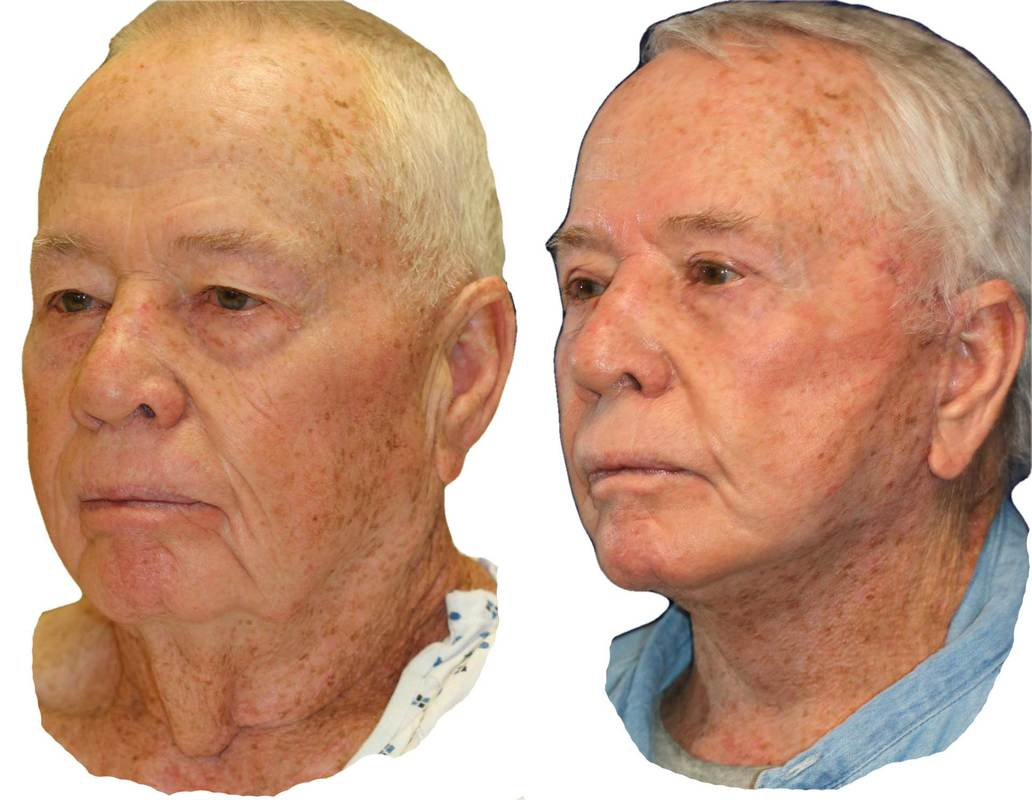 male face aging process
