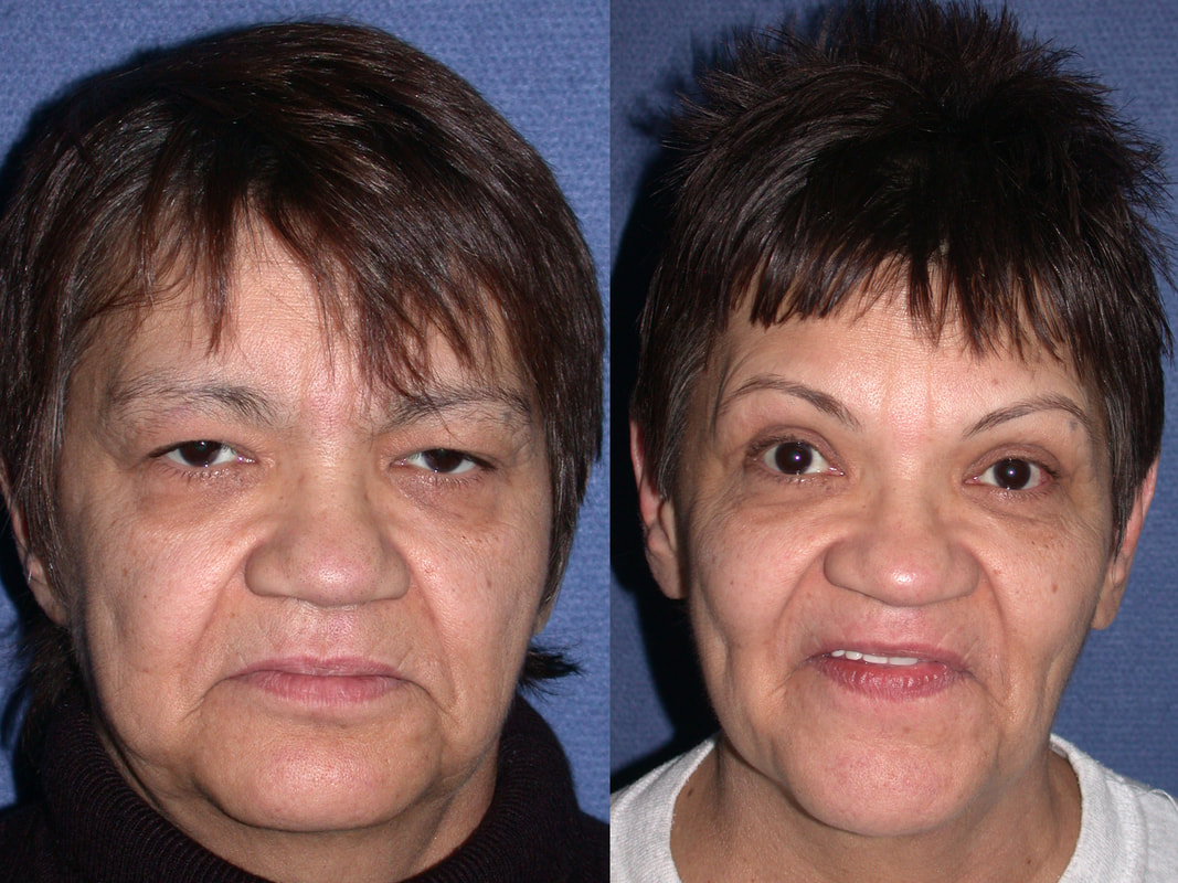 Photos show how beautiful a face may look just with upper blepharoplasty and ptosis repair by Dr. Bhupendra C. K. Patel MD. Patel Blepharoplasty and Patel Facelift